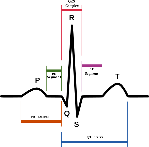 ECG waveform and feature of P to U